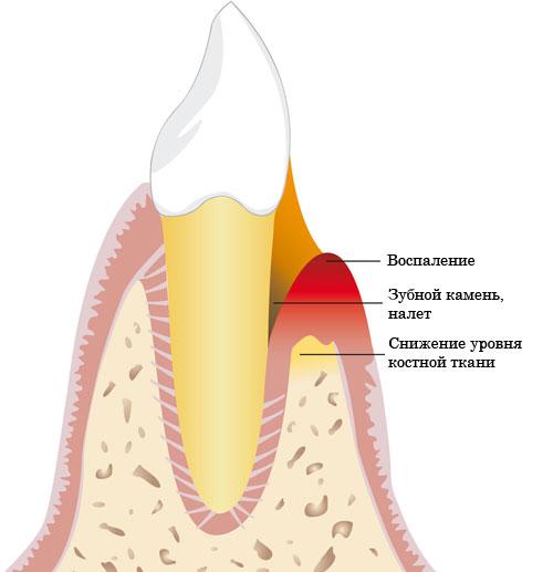 Признаками пародонтоза легкой степени являются следующие показатели.  Шейки зубов или корня зуба обнажены не более...