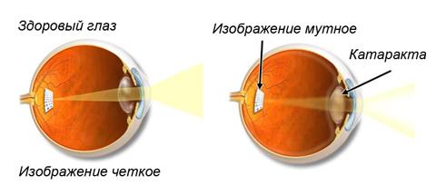 v. katarakta