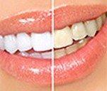 Отбеливание зубов в  стоматологии «San Marco»