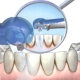 Вектор-терапия в стоматологической клинике «Дентим-А»