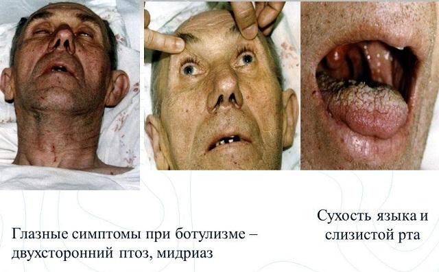 Ботулизм вУкраинском государстве: вКиеве мужчина чуть не скончался из-за вяленой рыбы