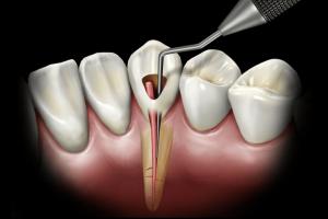 Новости Днепра про Эндодонтия в стоматологической клинике San Marco