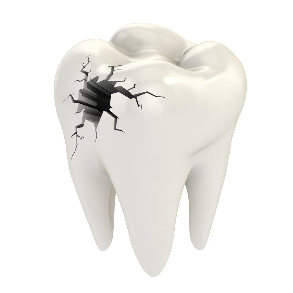 Новости Днепра про Стоматологическая клиника «Дентим А»: кариес – серьезная проблема со здоровьем
