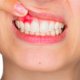 Чем опасна киста зуба знают в клинике «Дентим А»