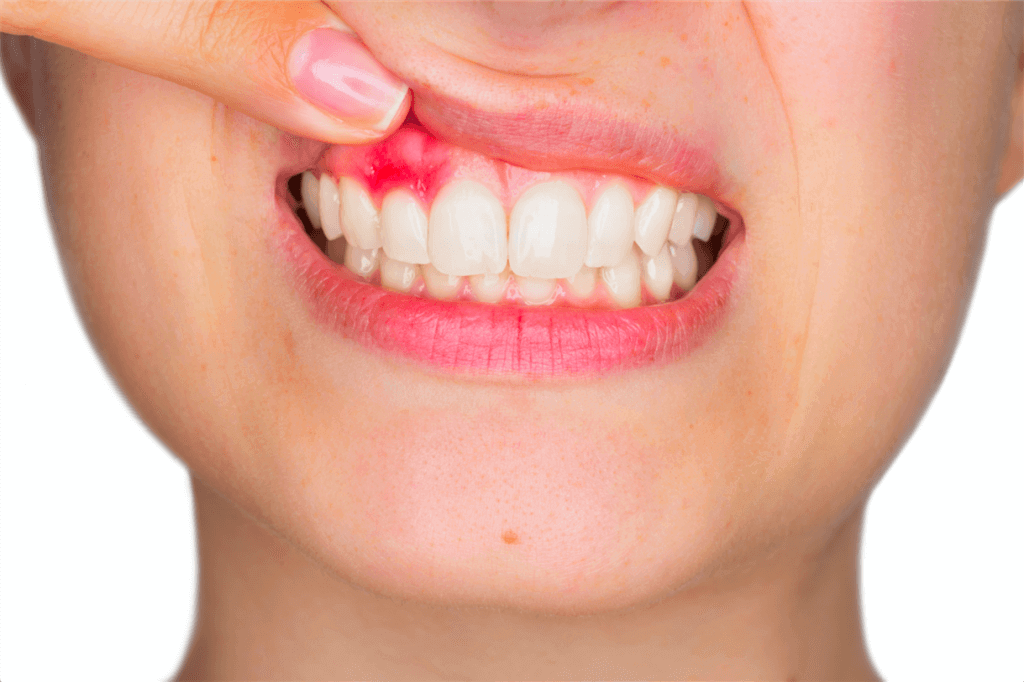 Новости Днепра про Чем опасна киста зуба знают в клинике «Дентим А»