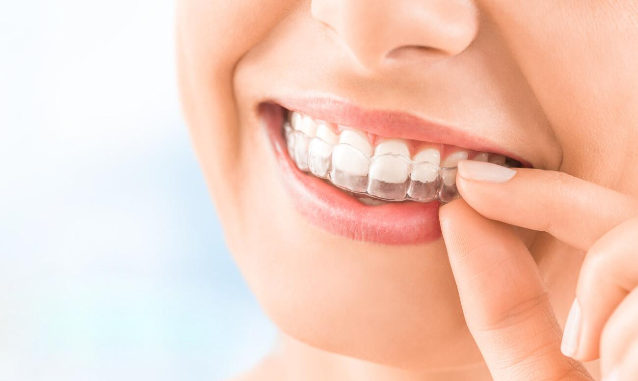 Новости Днепра про Клиника «Сан Марко» – выравнивание зубов по передовым технологиям