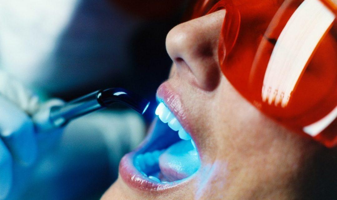 Новости Днепра про Клиника «Сан Марко» предлагает эффективное отбеливание зубов по инновационной методике