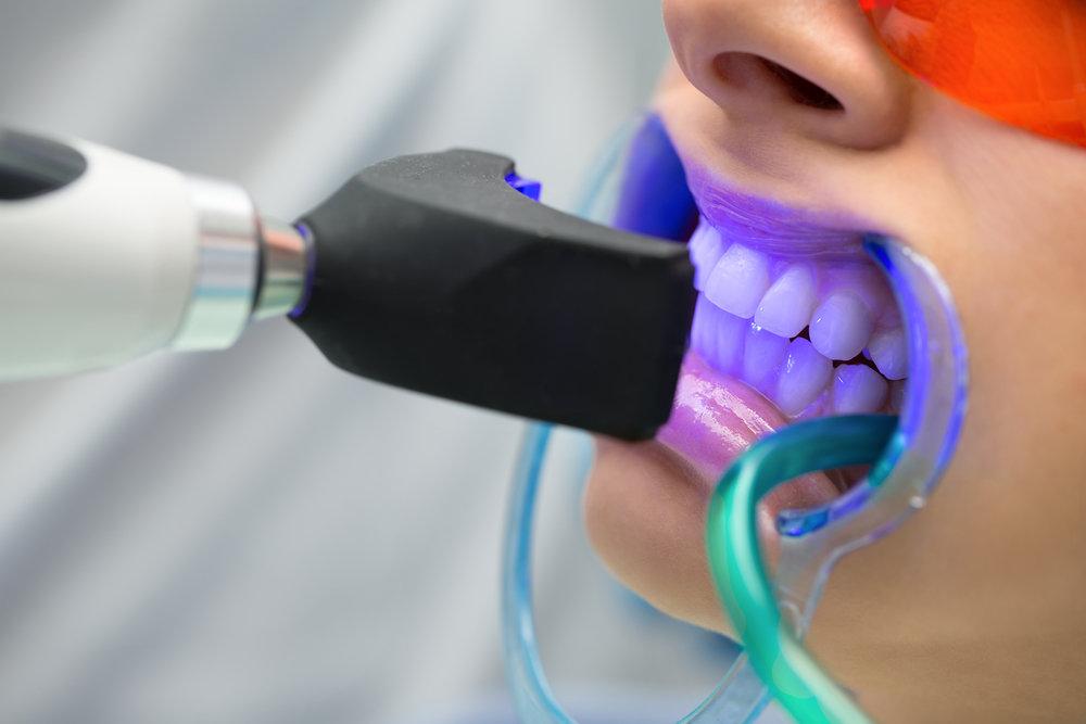Новости Днепра про Технологии, которые быстро и качественно отбеливают ваши зубы