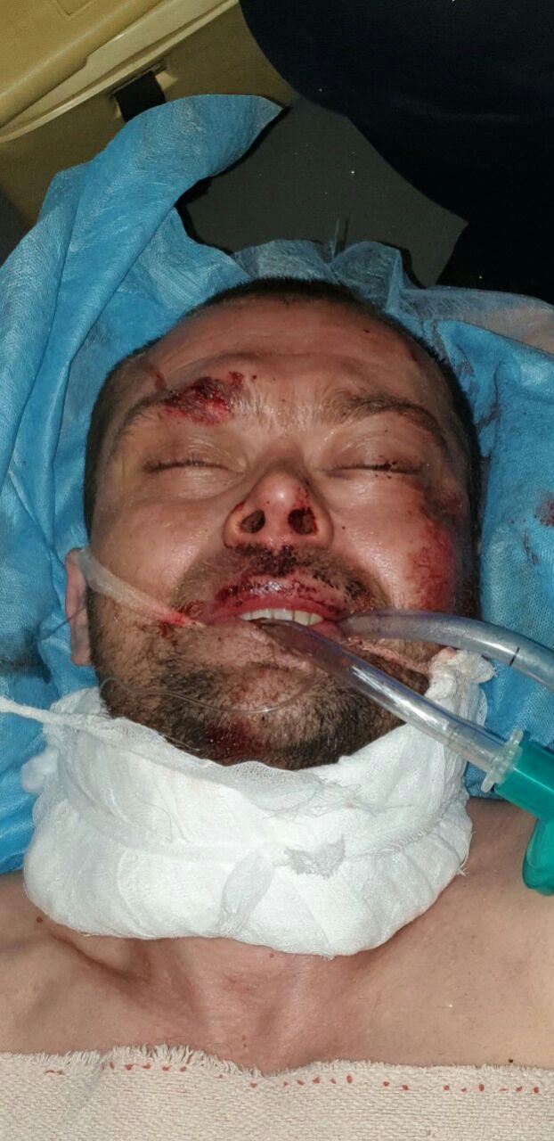Новости Днепра про Помогите опознать: в ДТП погиб неизвестный мужчина