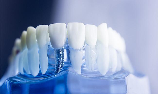 Новости Днепра про Зубные имплантаты от «Дентим-А» помогают сохранить лицо и молодость