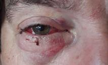 Под Днепром неизвестные напали на местного жителя