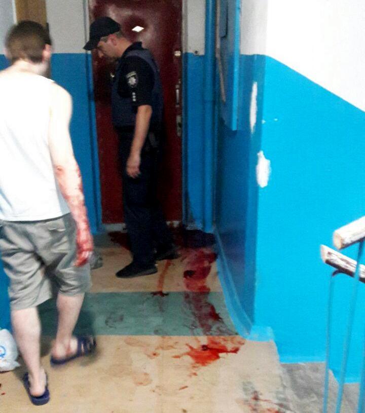 Женщину избили топором по голове. Новости Днепра