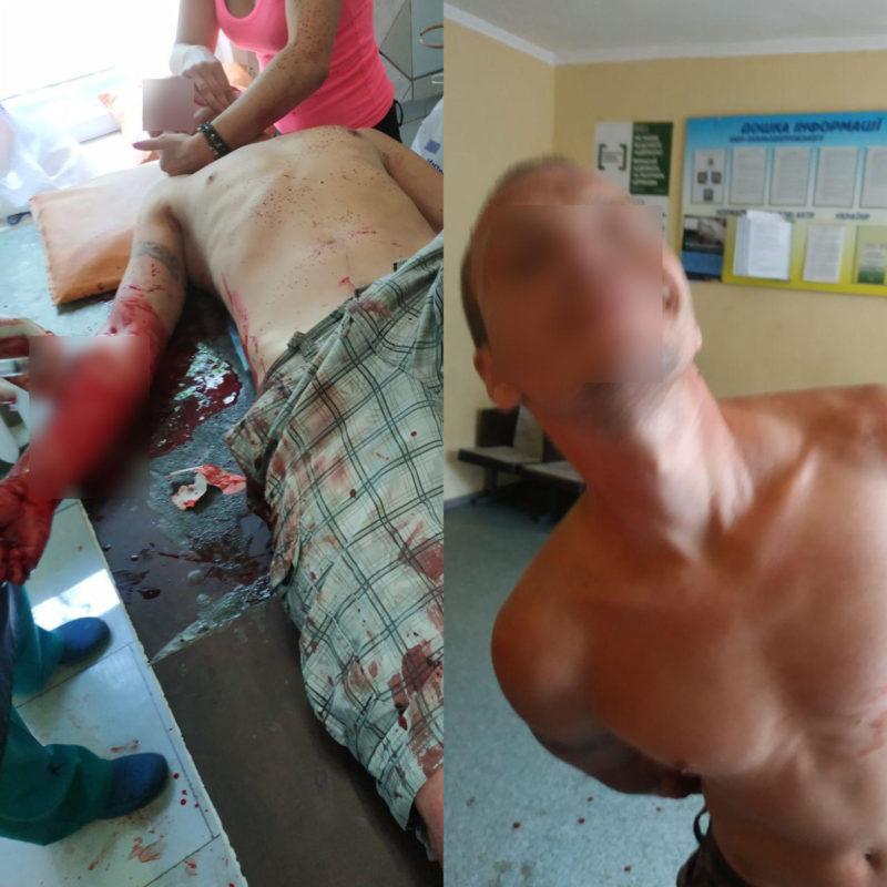 Окровавленного мужчину медикам передали патрульные. Новости Днепра