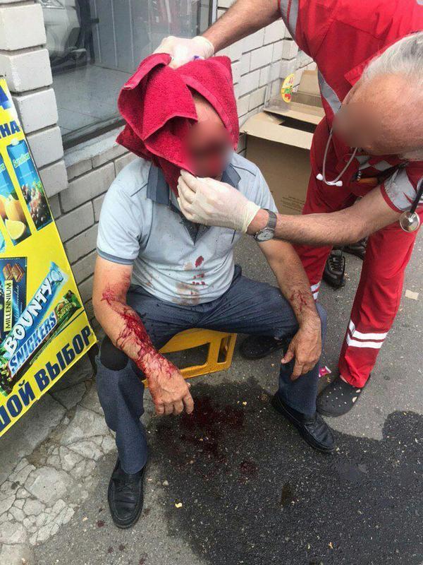 Мужчина получил пулю в голову. Новости Днепра