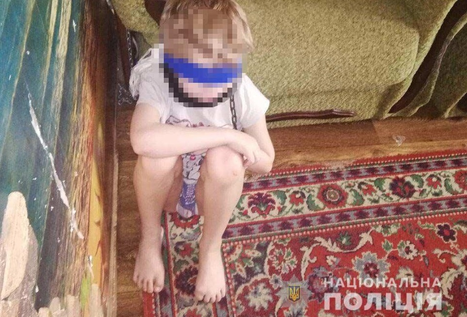 Держала ребенка на привязи и жестоко избивала: продолжение истории. Новости Днепра