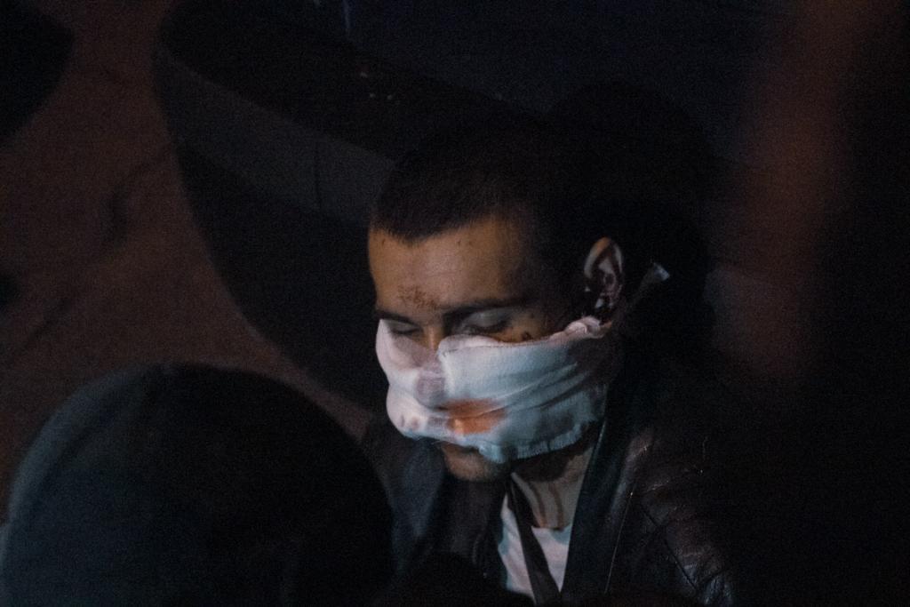 Ночью вооруженный грабитель пробрался в офис депутата и получил пулю в лицо. Новости Днепра