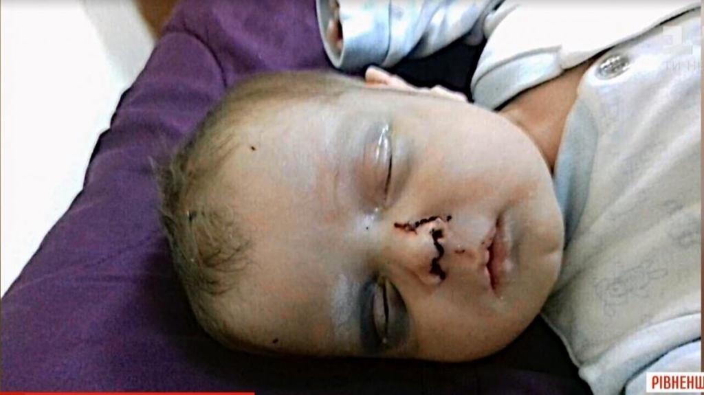 «Устала от крика»: горе-мать избила и бросила новорожденного сына. Новости Украины