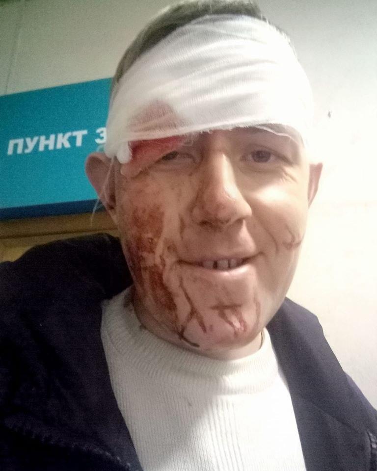 «Не понравилось обслуживание»: в Днепре «недовольный пациент» избил медика. Новости Днепра