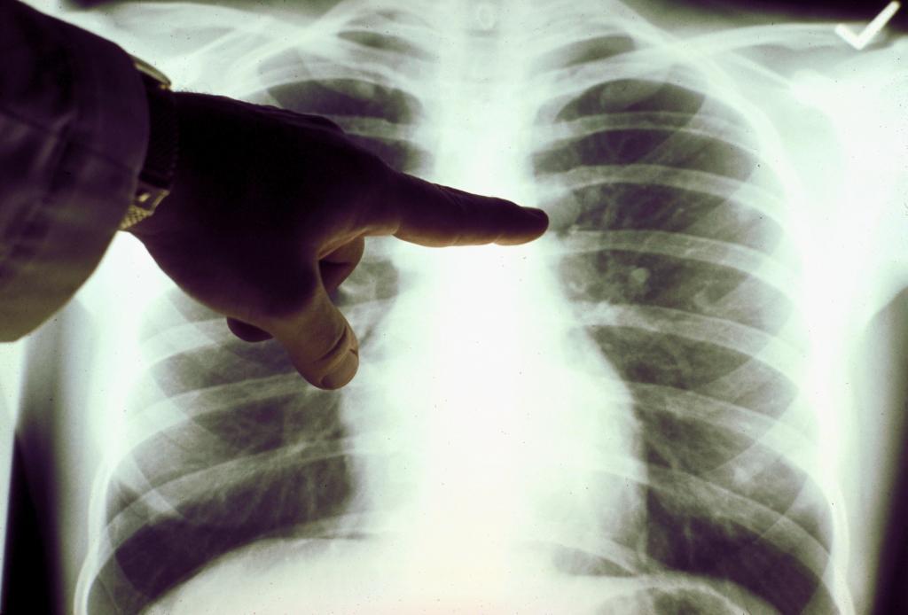 В Днепре от вирусной пневмонии умер мужчина. Новости Днепра