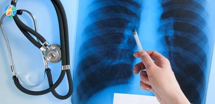 На Днепропетровщине туберкулез будут лечить всего в двух городах. Новости Днепра