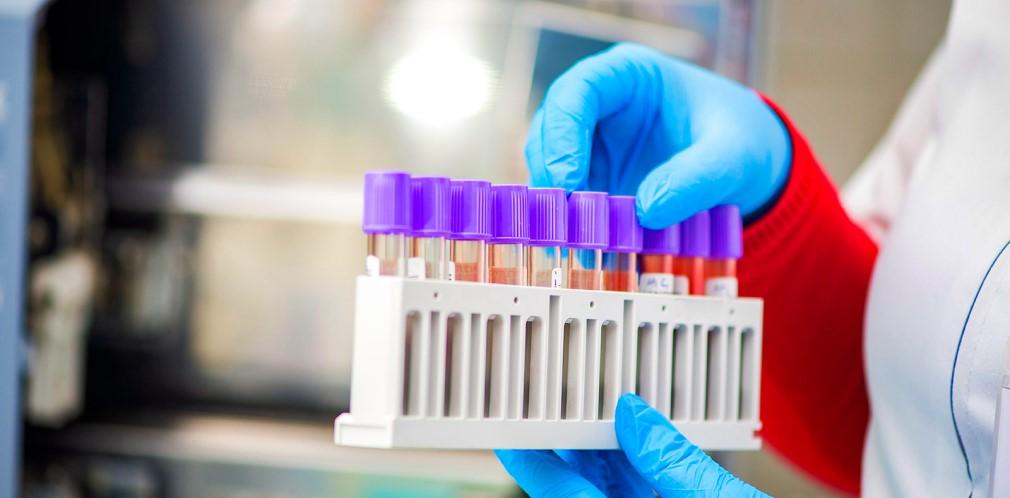 17 новых случаев коронавируса на Днепропетровщине. Новости Днепра