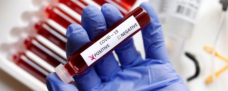 Пациентке с коронавирусом оказано лечение