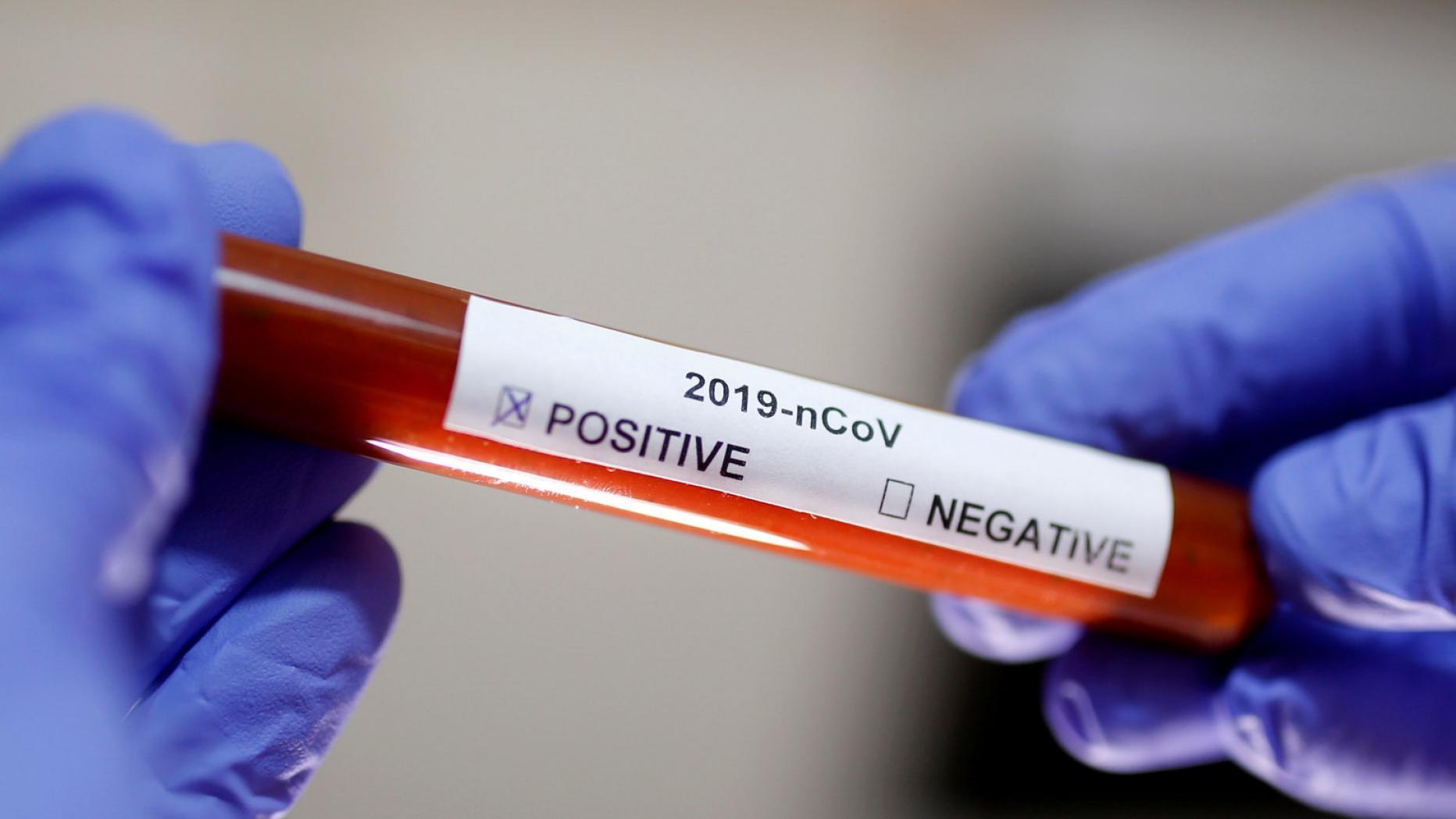 коронавирус COVID-19 Днепр