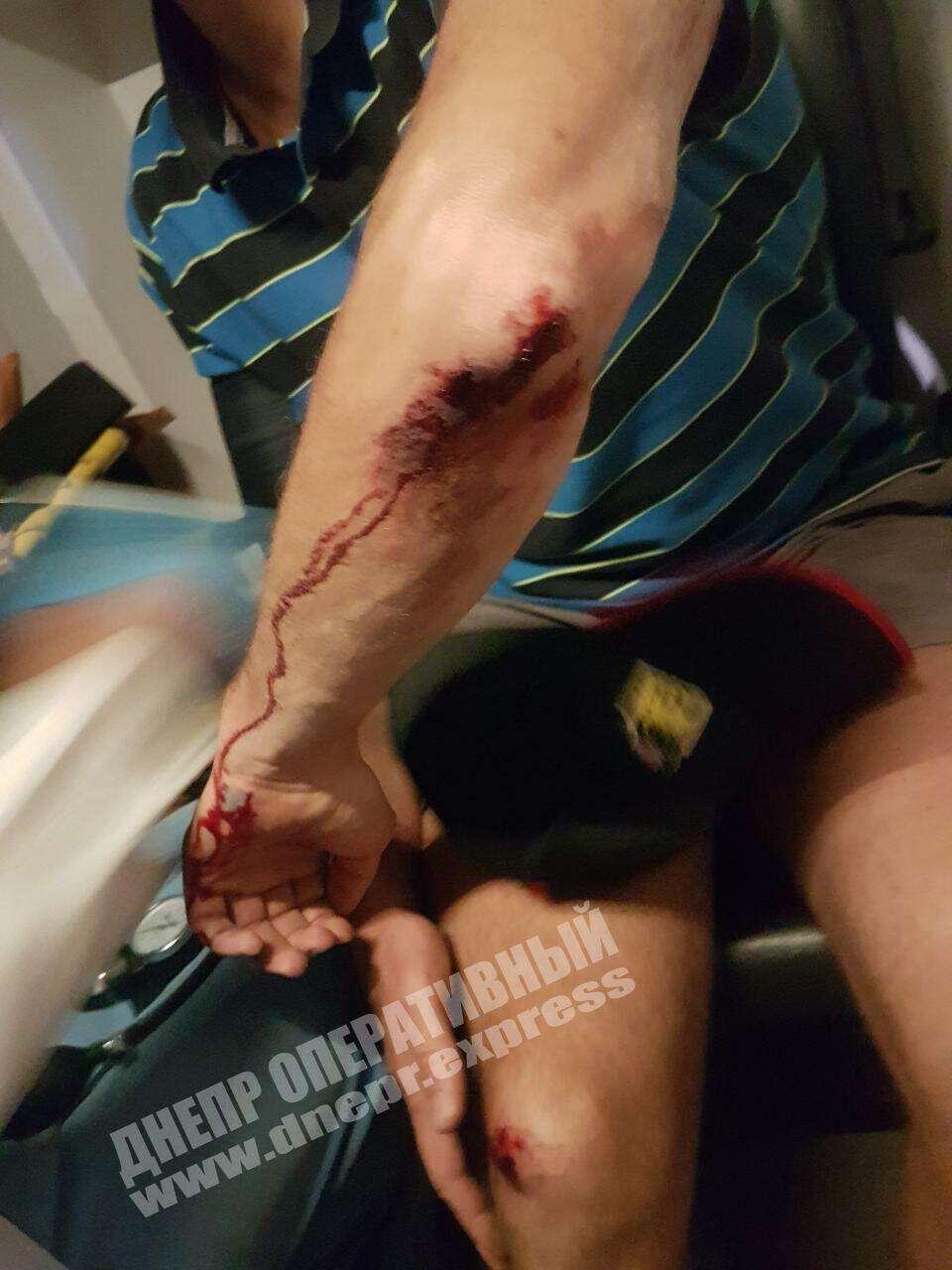 ДТП в Днепре: пострадал велосипедист. Новости Днепра