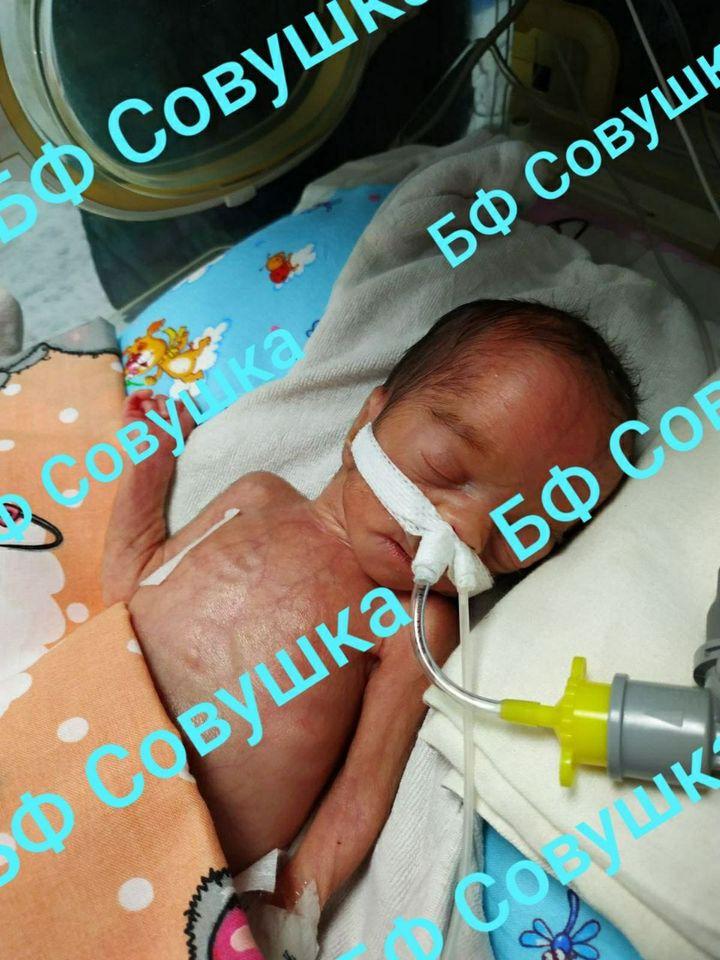 В области спасают жизнь недоношенного ребенка. Новости Днепра