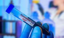 В Украине зафиксирован антирекорд по госпитализации с COVID-19