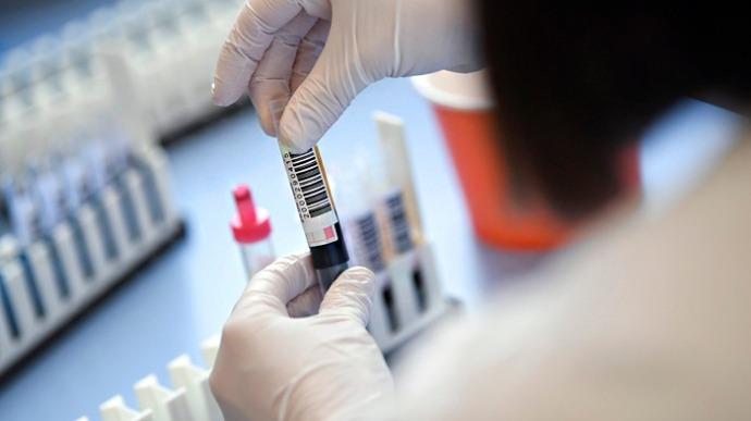 Днепропетровская область лидирует в количестве зараженных коронавирусом за сутки. Новости Днепра