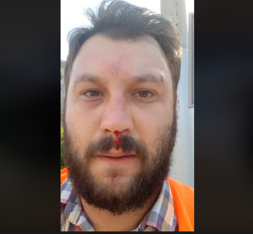 В Днепре напали на мужчину и избили. Новости Днепра