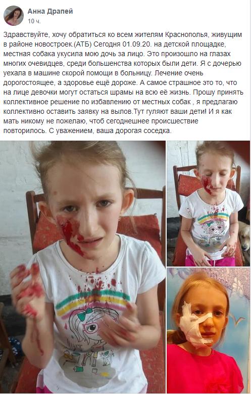 В области собака напала на ребенка. Новости Днепра
