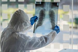 Обнародована официальная статистика заболеваемости коронавирусом в Днепре. Новости Днепра