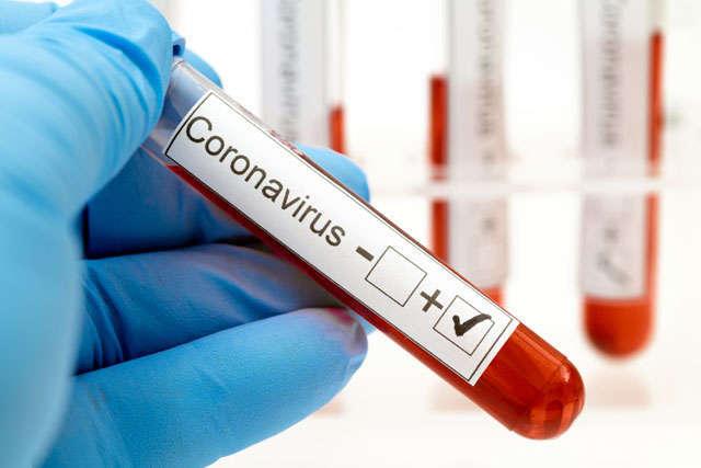 Тесты на коронавирус. Новости Днепра