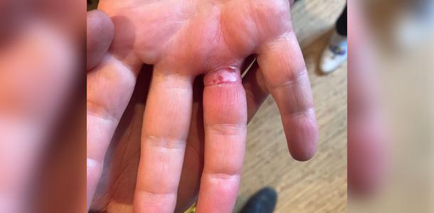 Днепрянка не могла снять обручальное кольцо с пальца, пришлось вызывать спасателей