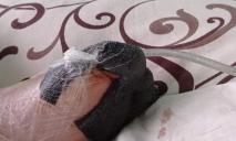В Днепре девочка может потерять пальцы на ноге
