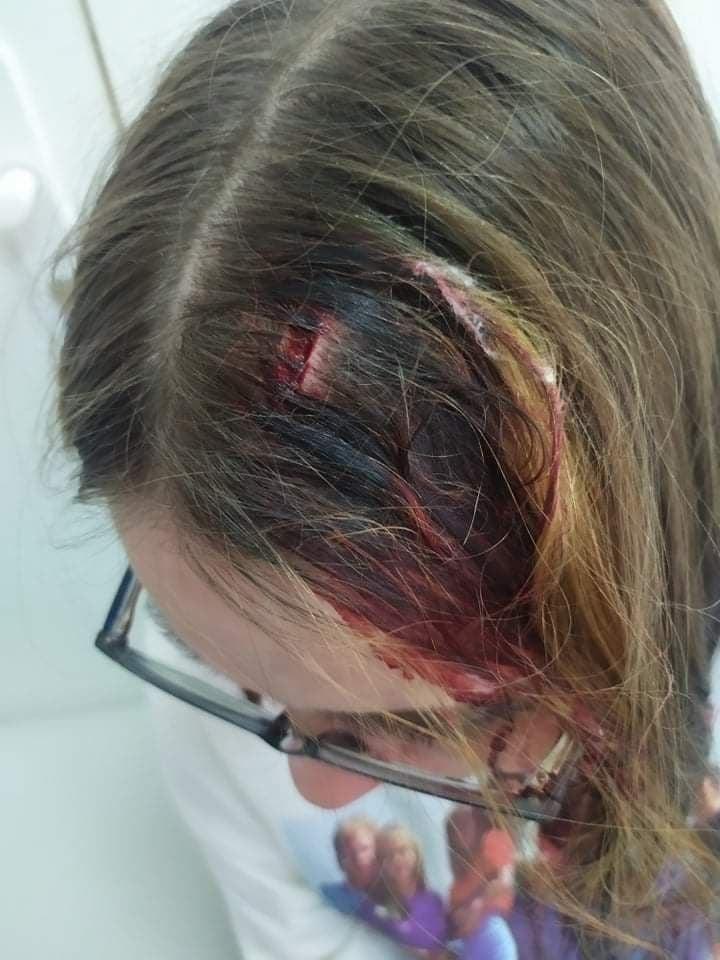 В регионе избили школьницу. Новости Днепра