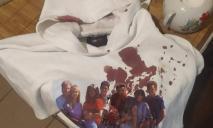 «Она его спровоцировала»: в днепровской школе девочке разбили голову