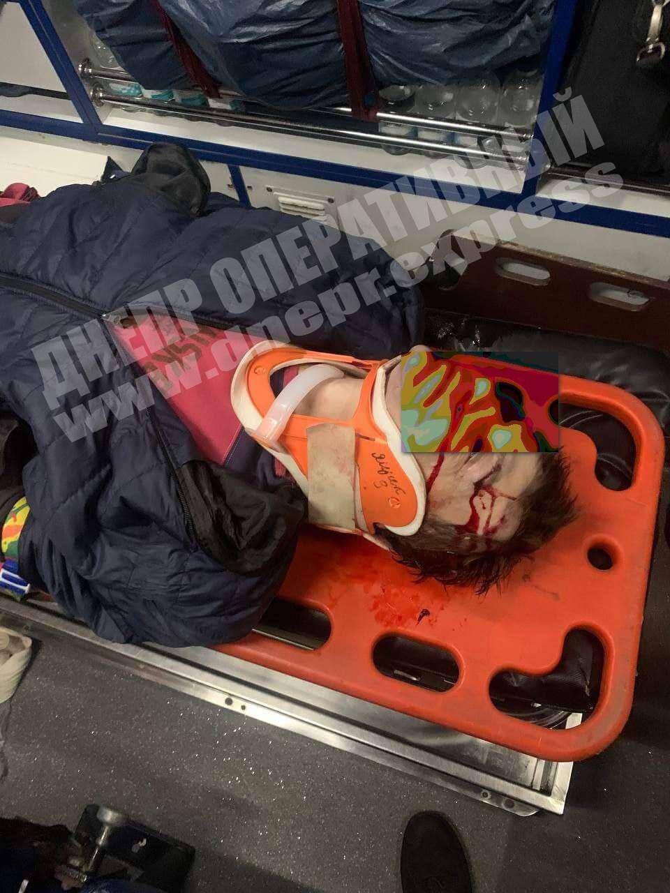 Новости Днепра про Мужчина в Днепре попал под колеса грузовика: (ФОТО 18+)