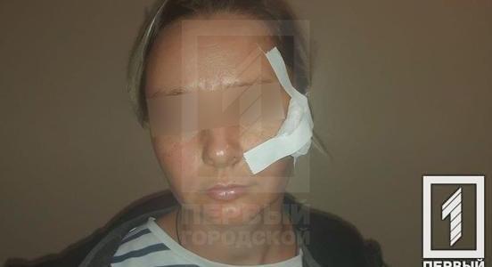 Пролетело: в Кривом Роге из окна машины бросили бутылку и разбили голову девушке